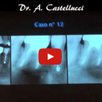 Scelte-endodontiche-in-era-implementare