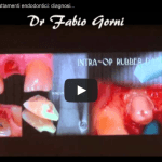 Video Ritrattamenti endodontici contro impianti dentali
