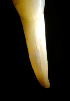 traumi-dentali-4