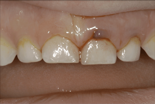 traumi-dentali-5
