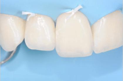 traumi-dentali-7