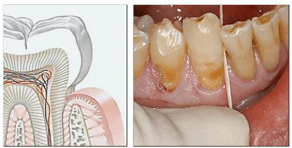 dentisensibili-1
